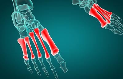 【徹底解説】中足骨骨頭痛の原因は?あなたの...|その他